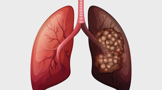 Mengenal Penyebab dan Gejala Kanker Paru Paru